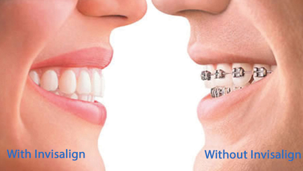 Invisalign in Livingston