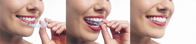 Livingston Invisalign
