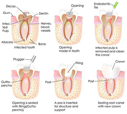 Livingston Root Canal