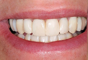 Short Hills Before and After Smile Makeover