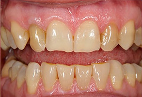 Millburn Before and After Dental Implants